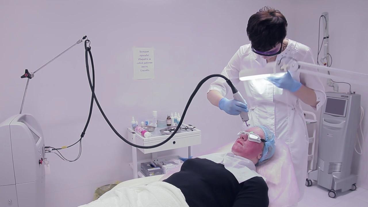 СЭМ-ПРОФИ. ЛАЗЕР V-BEAM. Лечение розацеа.